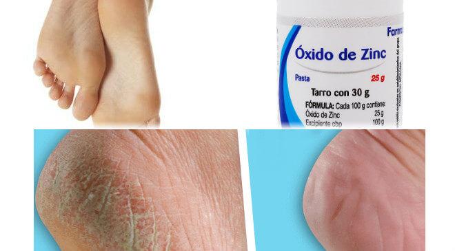 usos del oxido de zinc en los pies