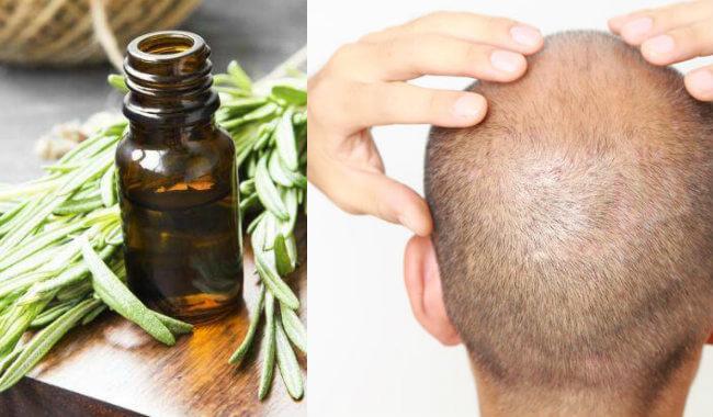 aceite de romero para la caida del pelo
