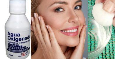 agua oxigenada para las manchas en la cara y la piel