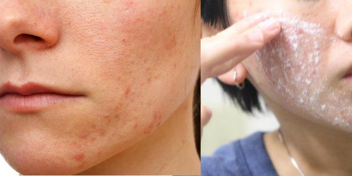como usar el ácido salicílico en el acné