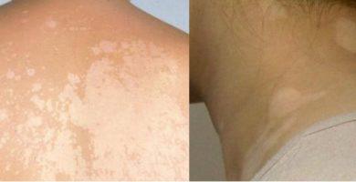 por qué salen las manchas blancas en el cuerpo