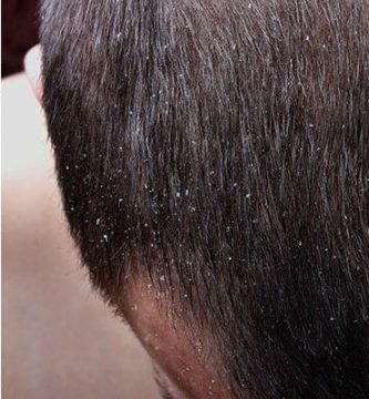para qué sirve el shampoo nizoral